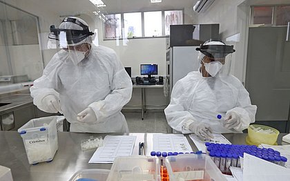 Lacen já realizou mais de 20 mil testes para detectar covid-19
