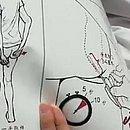 Folheto chinês explica como o procedimento é realizado