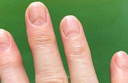 Sinais nas unhas podem indicar se você já teve Covid-19.