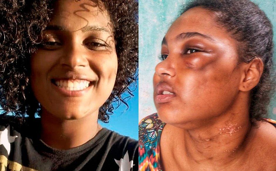'Usou cola comum para fechar feridas', diz jovem espancada por namorado em Camaçari